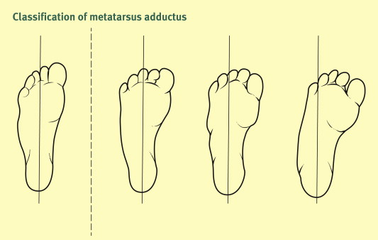 metatarsus adductus classification and relationship to outcomes of treatment