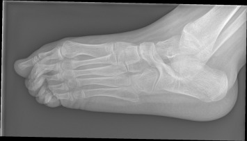 Foot disorders in children - Surgery - Oxford ...